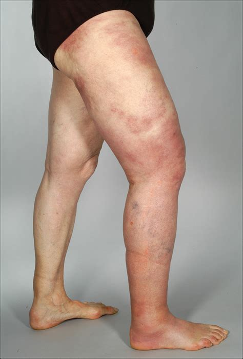 Giant Cellulitis-like Sweet Syndrome, a New Variant of