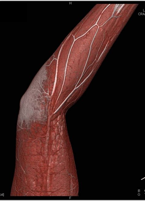 Cellulitis of the Elbow in 3D Display - Musculoskeletal